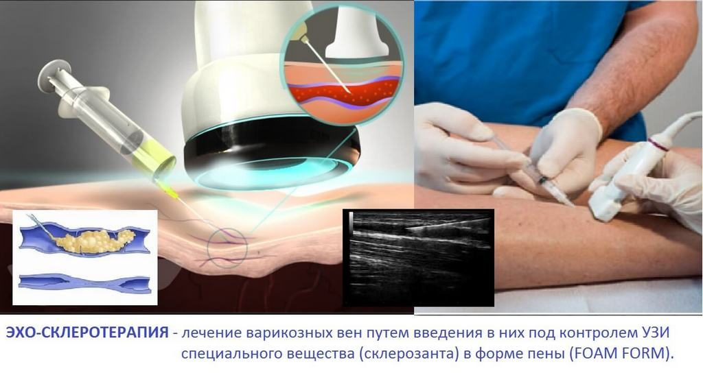 Склерозация варикозных вен